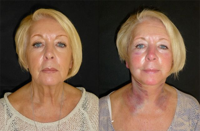 Say Goodbye To Sagging Skin Forever With Neck Lift Surgery
