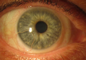 Why Are Scleral Lenses A Better Option Than Contact Lenses?