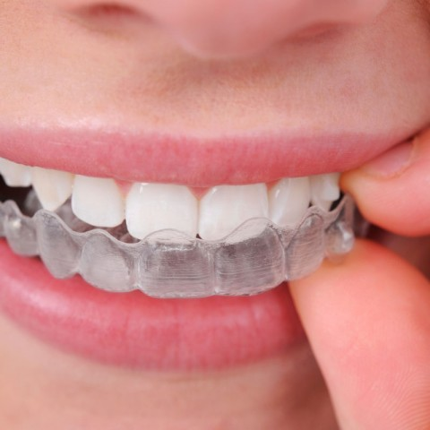 Invisalign - Why You Need To Choose It over Traditional Braces