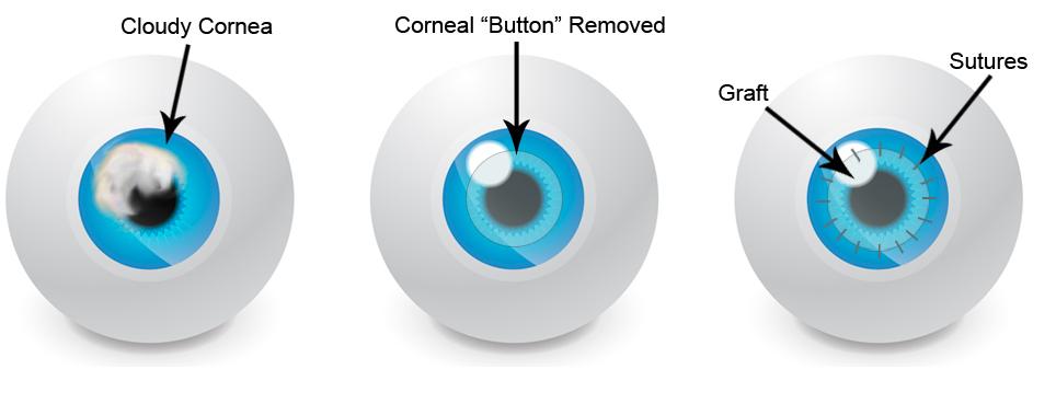 Corneal Transplant