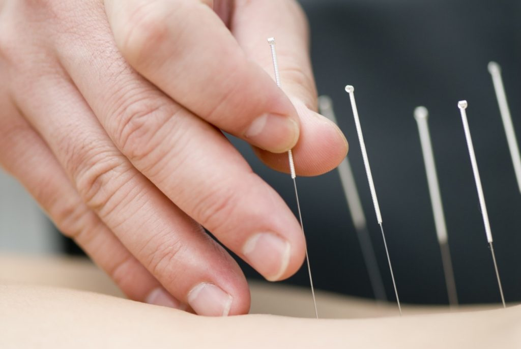 How Acupuncture Works and Why