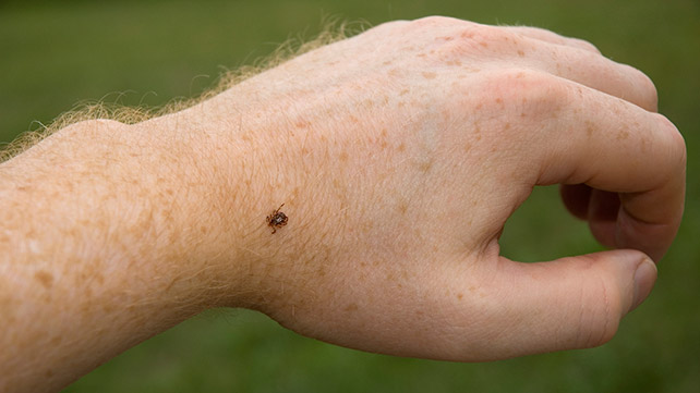 Can Humans Get Ticks from Their Pets