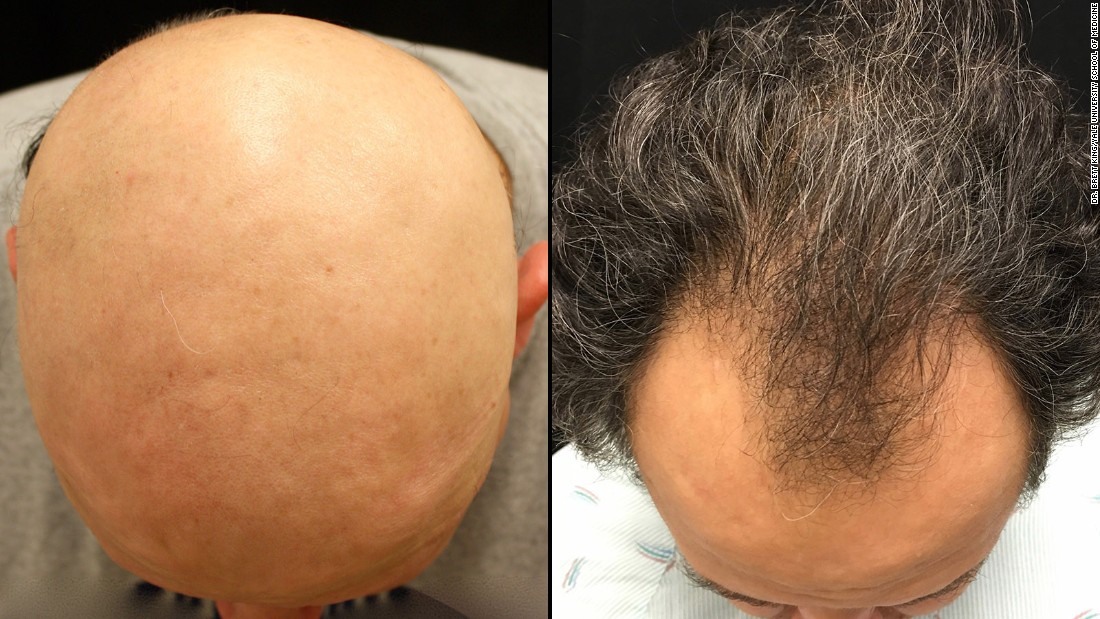 Why Hair Transplant Is Necessary For Everyone To Know